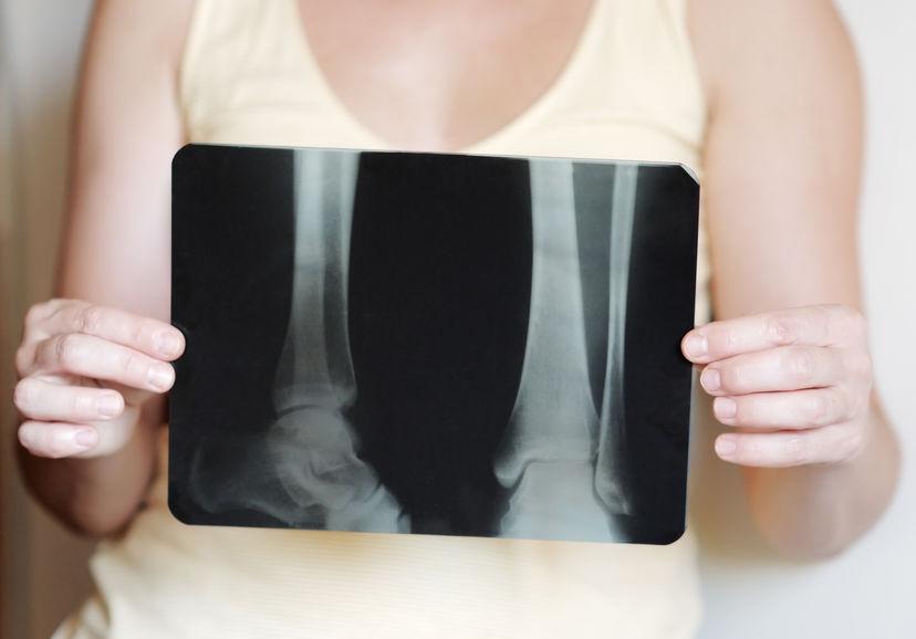menopausa e osteoporosi: consigli nutrizionali